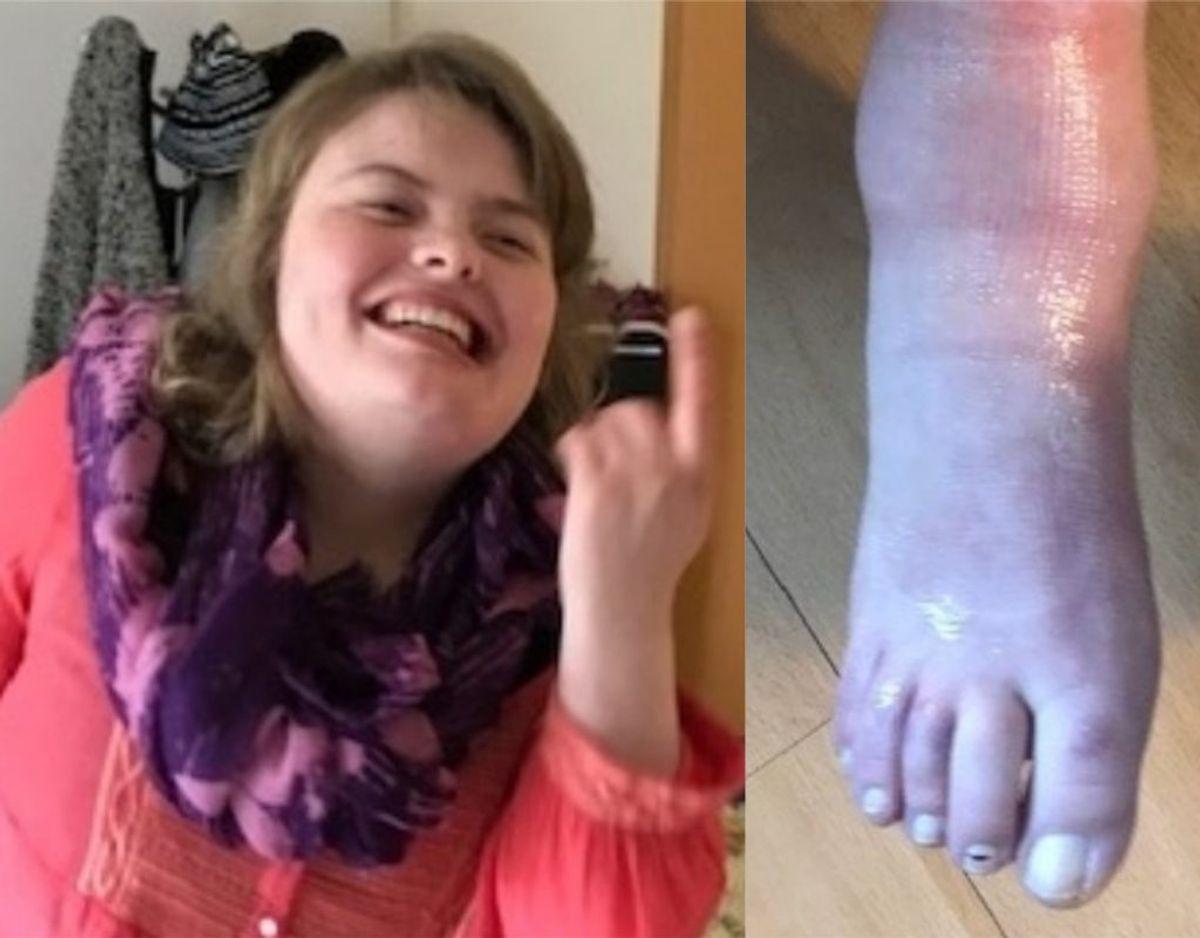 Nadia Pedersen er mentalt og fysisk handicappet. Foto: TV2 Lorry.