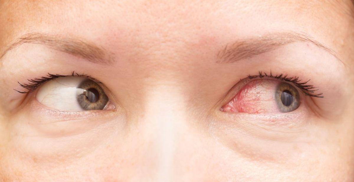 Peberspray, også kaldet OC (Oleoresin Capsicum), er beslægtet med tåregas – men er langt stærkere. Arkivfoto.
