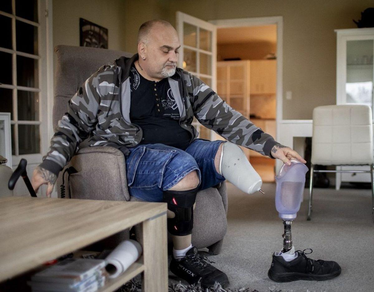 Oveni de fysiske forandringer og konstante smerter i benene døjer Thomas Brodthagen også med PTSD. – Foto: Thomas Arnbo / Fagbladet 3F.
