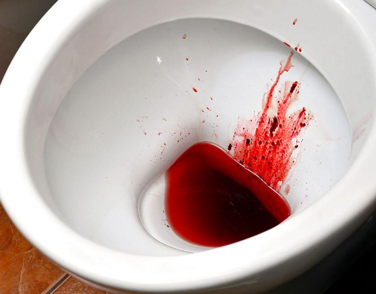 Et af symptomerne er: Blodig urin. Foto: Scanpix.