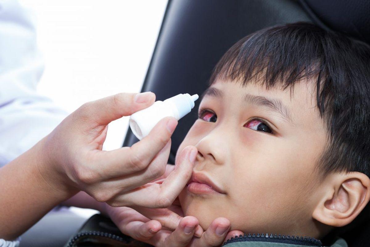 HØFEBER: Symptomer fra øjnene i form af hævelse, rødme og kløe. Kilde: Astma-Allergi Danmark. Arkivfoto.