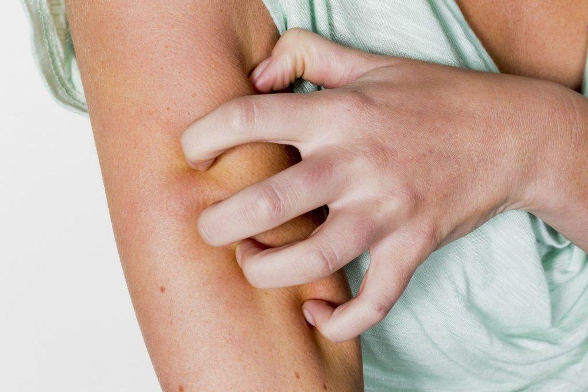 I Danmark er det ikke lovligt at bruge myggemidler med stoffet DEET (diethyltoluamid). Kilde: Forbrugerrådet Tænk Foto: Scanpix
