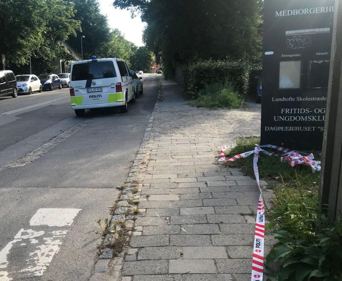Den 24-årige var forbrændt på store dele af underkroppen. Foto: Presse-fotos.dk