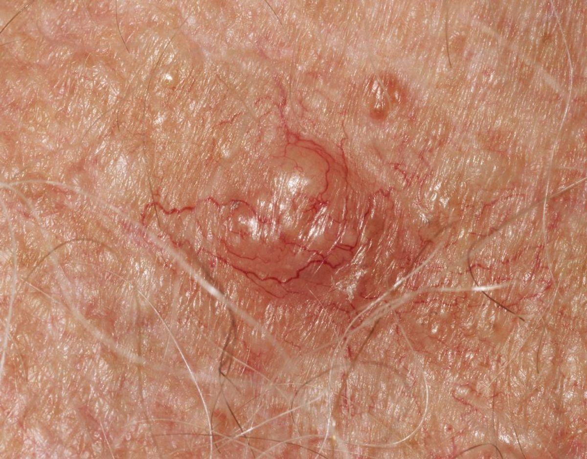 Fotos af hudkræft: Sådan kan det se ud, når man er ramt af basalcellekræft- carcinoma basocellulare- der er den almindeligste form for hudkræft. Foto: Scanpix.