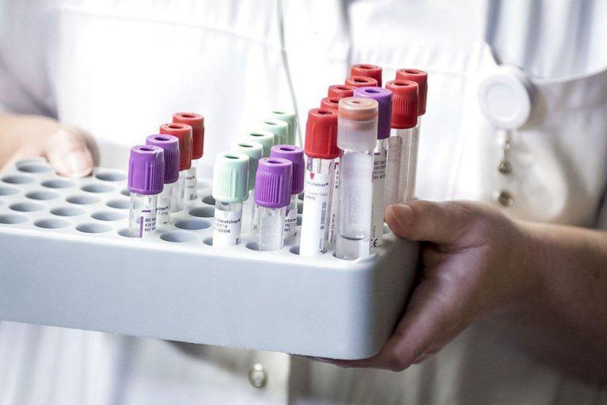 Hvis du ikke har spist noget af den mad, der farver urinen rød, så kan det være tegn på blod i urinen. Foto: Scanpix