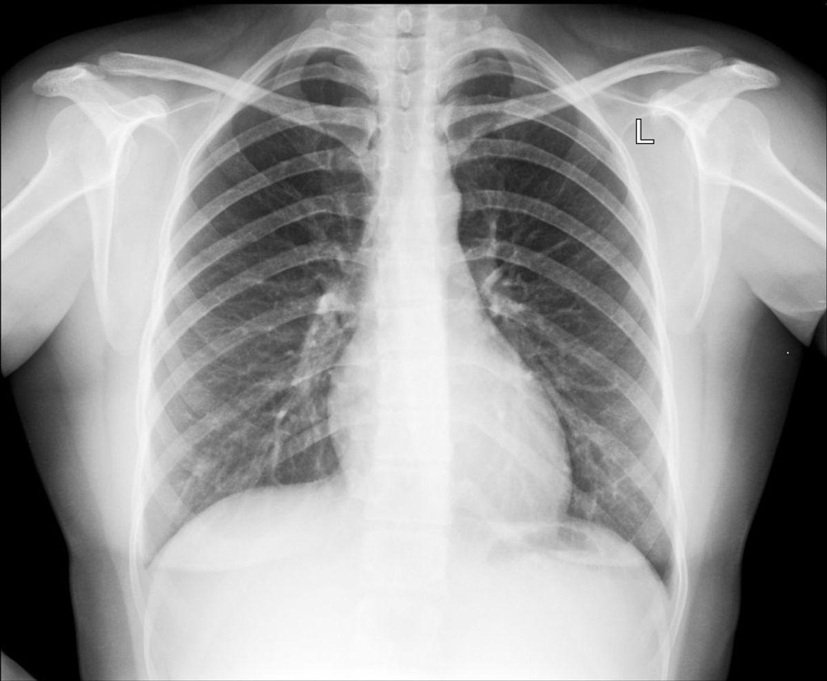 Hvis du er lungesyg, er her i galleriet en række gode råd. KLIK VIDERE OG LÆS DEM.