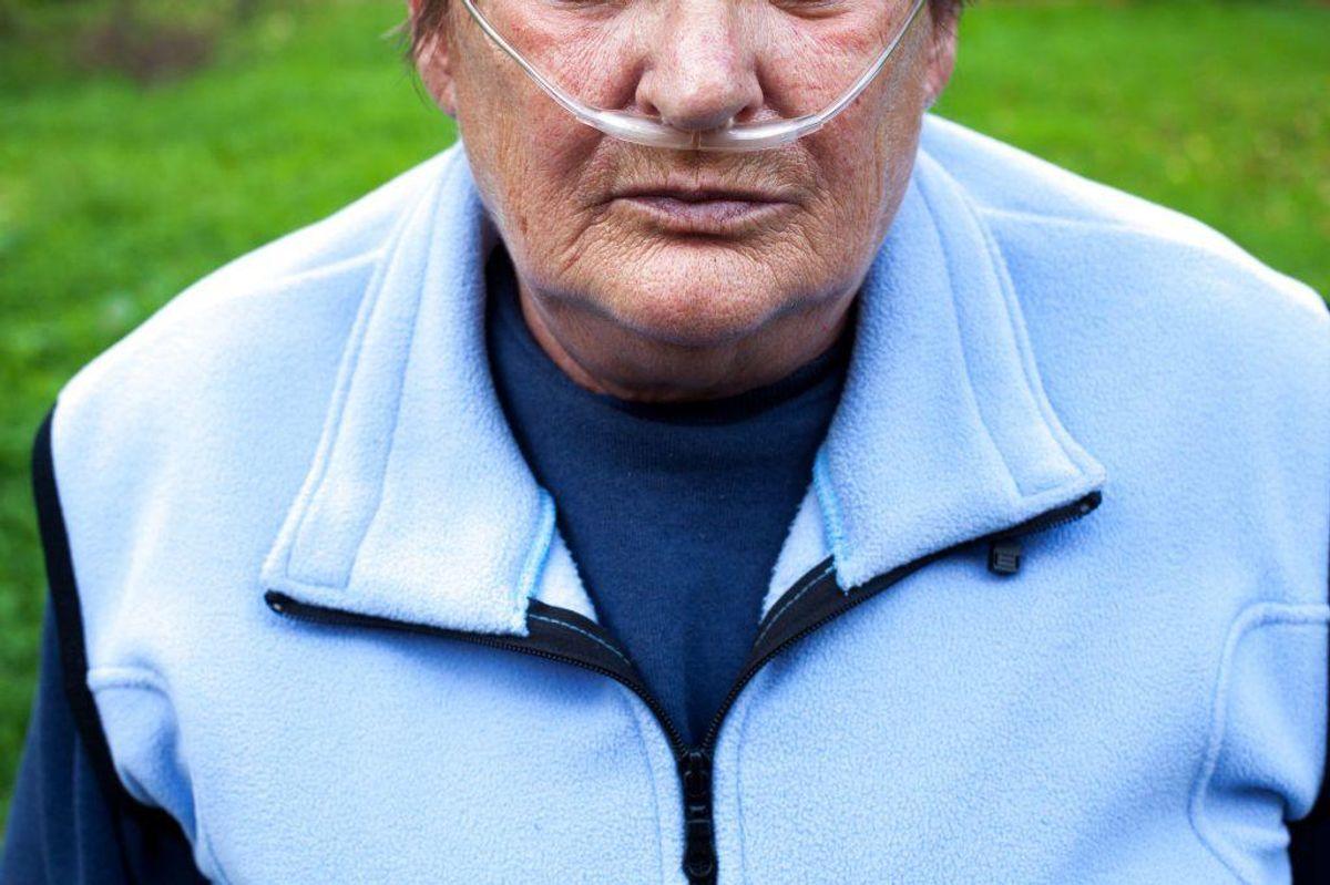 Kronisk obstruktiv lungesygdom er bedre kendt som KOL. Der er tale om en permanent nedsættelse af lungefunktionen. Sygdommen er uhelbredelig og kaldes også for rygerlunger, da mange får KOL som følge af tobaksrygning. Tal fra WHO viste, at dødeligheden af KOL i 1999 var højere i Danmark end i de andre europæiske lande. Foto: Scanpix.