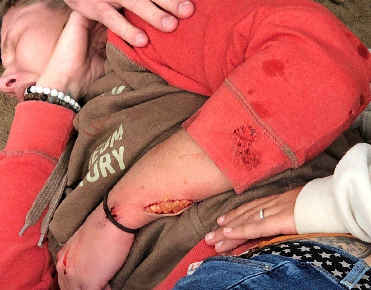 Jaguaren angreb kvindens arm, Foto: Scanpix/Adam Wilkerson Reuters.