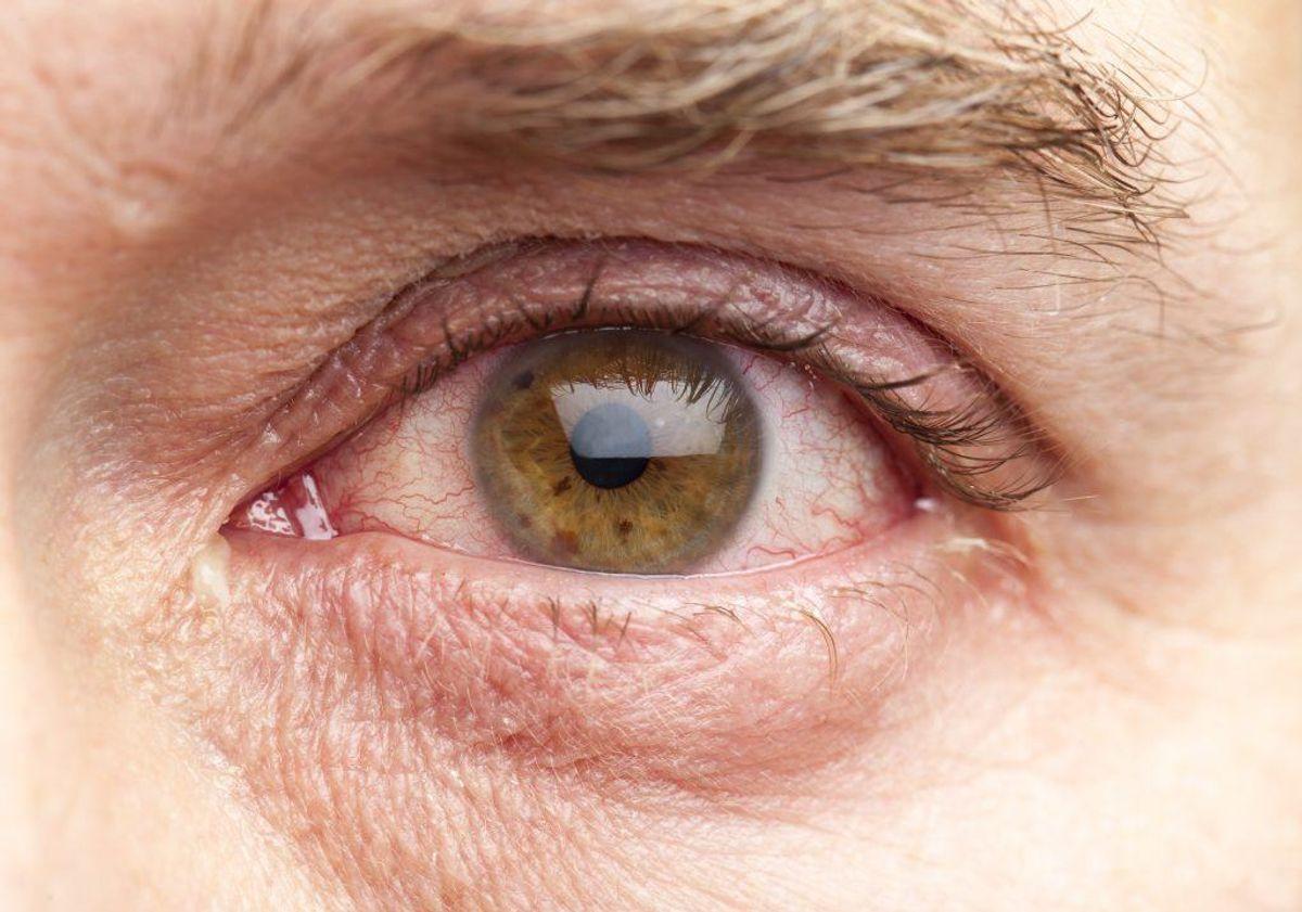 Øjet er kugleformet med en diameter på cirka 25 millimeter.