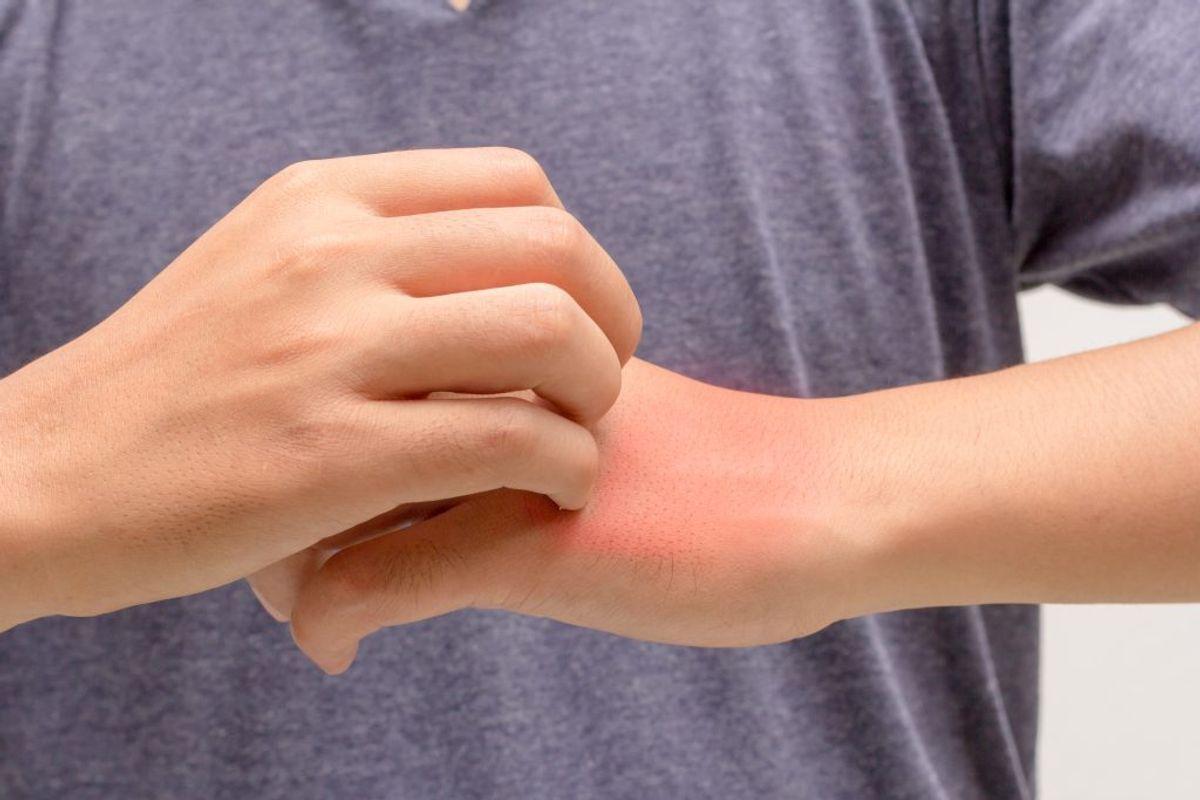 Mangel på vitamin a er en alvorlig lidelse, som blandt andet kan medføre tør hud. KLIK VIDERE OG SE, HVILKE FØDEVARER DET ER EN GOD IDE AT SPISE, HVIS DU MANGLER A VITAMIN. Arkivfoto.