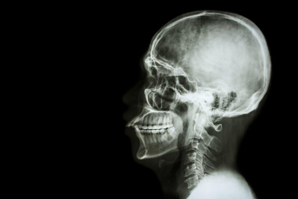 En MR- eller CT-scanning afslører oftest hjernetumorer. (Foto: Shutterstock)