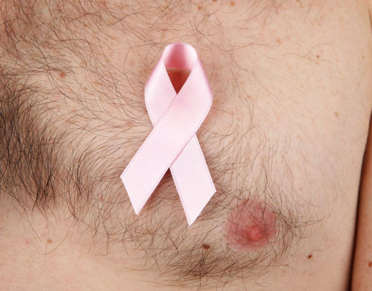 Det nok vigtigste af de kendte symptomer på brystkræft hos mænd, du skal kende, er en knude. Foto: Scanpix.