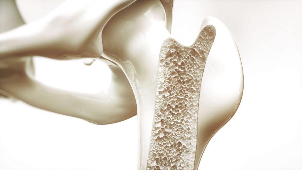 Osteoporose, også kaldet knogleskørhed, er en tilstand, hvor knoglemassen og -styrken er reduceret så meget, at man kan brække en knogle selv ved beskedne belastninger. Det skønnes, at 300.000 danskere lider af knogleskørhed. Foto: Scanpix.