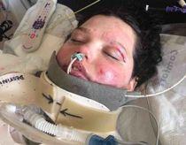 13-årig voldsomt forbrændt i TikTok-ulykke