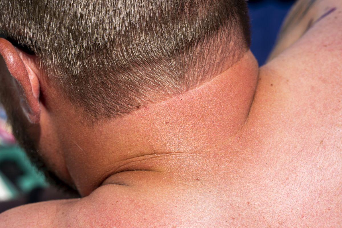 Eksperternes råd: SÅDAN lindrer du smerterne